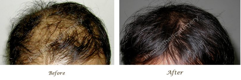 hair baldness treatment Delhi